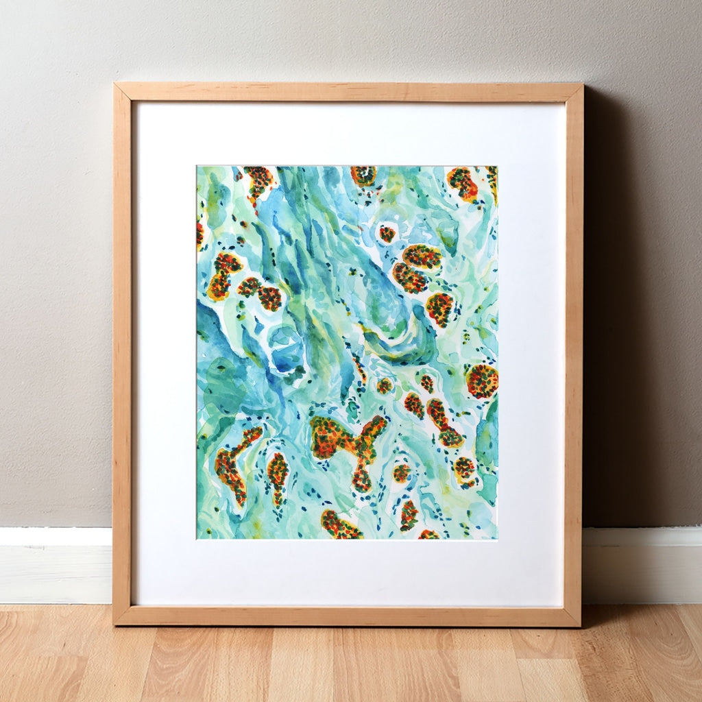 Melanoma Watercolor Print