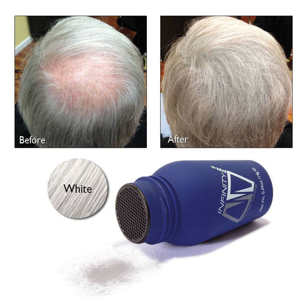 Home,Brands,Hair Loss - Infinity Hair Fibers For Thinning Or Balding Hair For Men And Women Travel Size 3 Gram