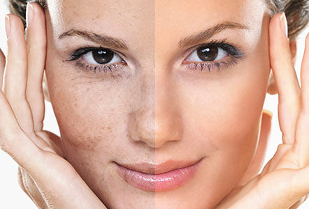 Dangers of Hydroquinone Skin Brightener & What We Suggest Instead