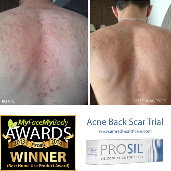 Acne back scars before and after