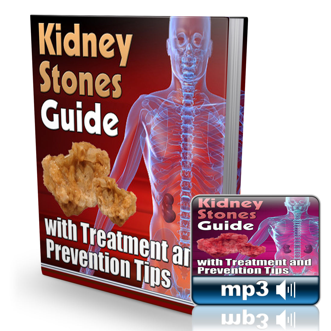 Natural Kidney Stones Guide Combo - Instant Downloadable Book (50+ pages) + Audio Book (Over 90 minutes) - traversebayfarms