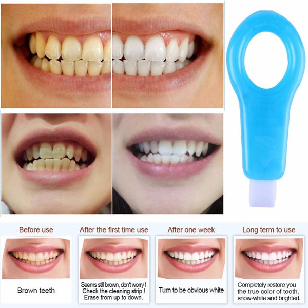 Pro Nano Teeth Whitening Kit - AH Boutique