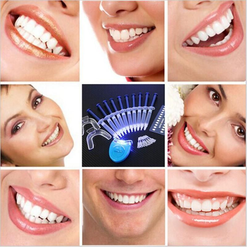 Hot Teeth Whitening - Gadget City Club