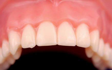 Do You Know The Signs And Symptoms Of Bleeding Gums?