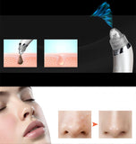Diamond dermabrasion blackhead pore cleansing vacuum beauty tool