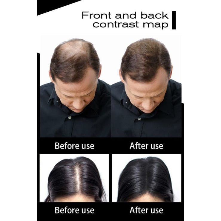 Get Full Hair Instantly With Toppik! - Works So Well!