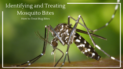 How to Treat Bug Bites: Identifying and Treating Mosquito Bites