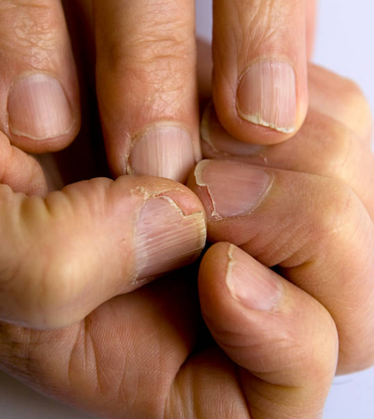 Brittle Fingernails?  8 Tips to Keep Them Strong