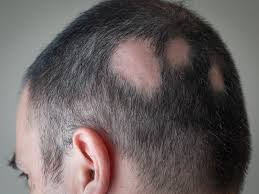 What is the best shampoo to use for Alopecia Areata?