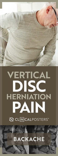 Can Vertical Disc Herniation Cause Pain?