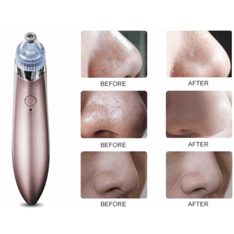 Image of excellent 4 in 1 Vacuum pore cleanser