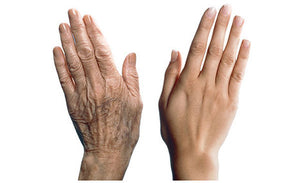 Are Your Hands Showing Your Age?
