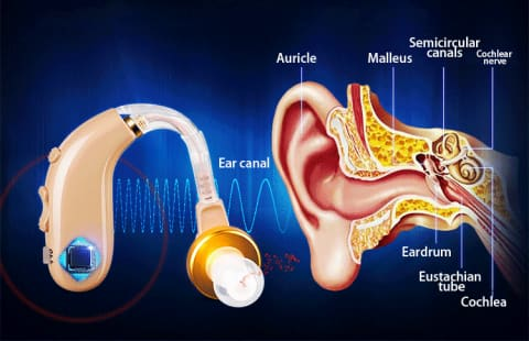 Rechargeable BTE Hearing Aid