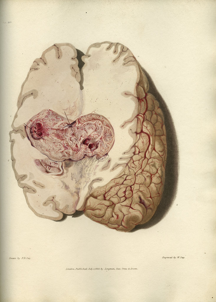 Detail of 'Cyst in the brain' by William Say